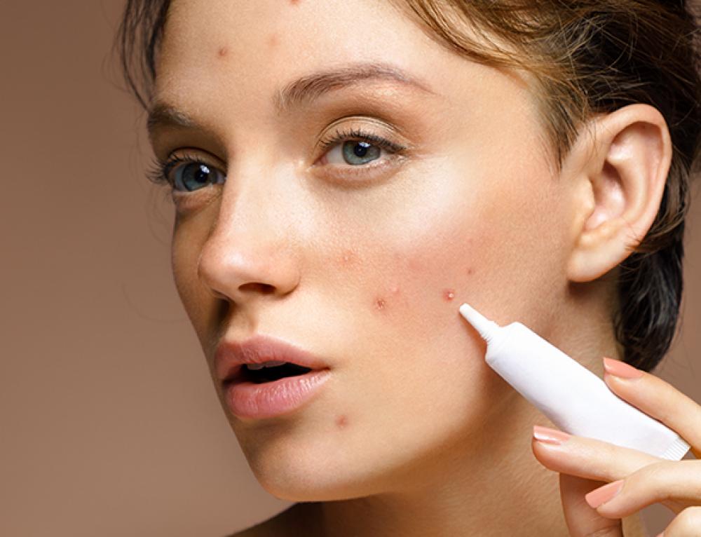 Alleati contro l'acne